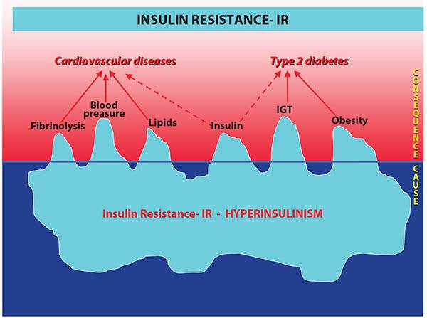 insulin rezistance