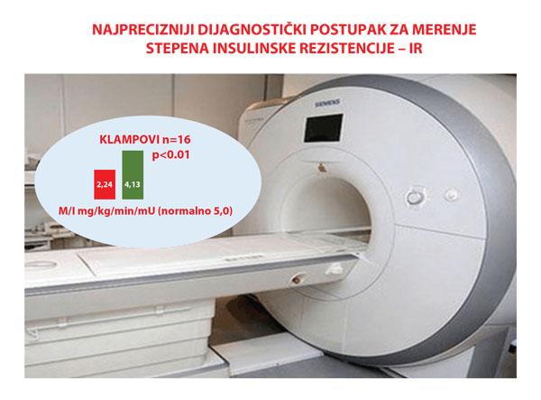 postupak_merenja_insulinske_rezistencije
